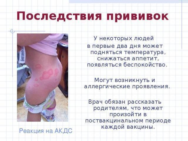 Вакцинация взрослых от столбняка: сроки, возможная реакция организма
