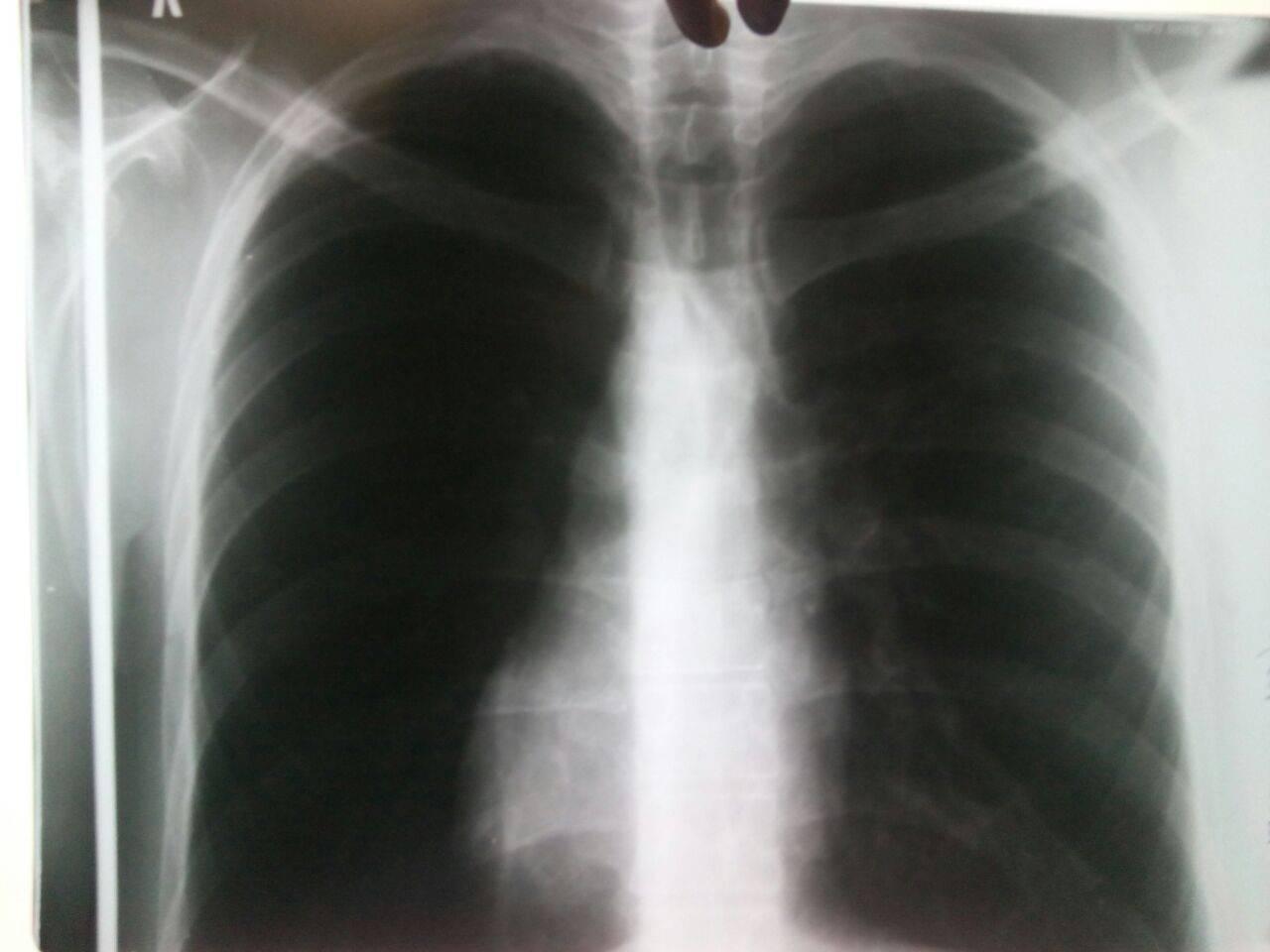 Рентген легких здорового человека - что видно на снимках