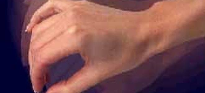 Как избавиться от тремора рук с похмелья?
