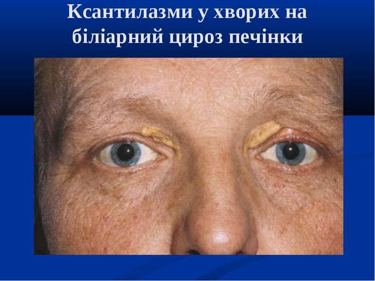 Что такое цирроз печени симптомы фото людей