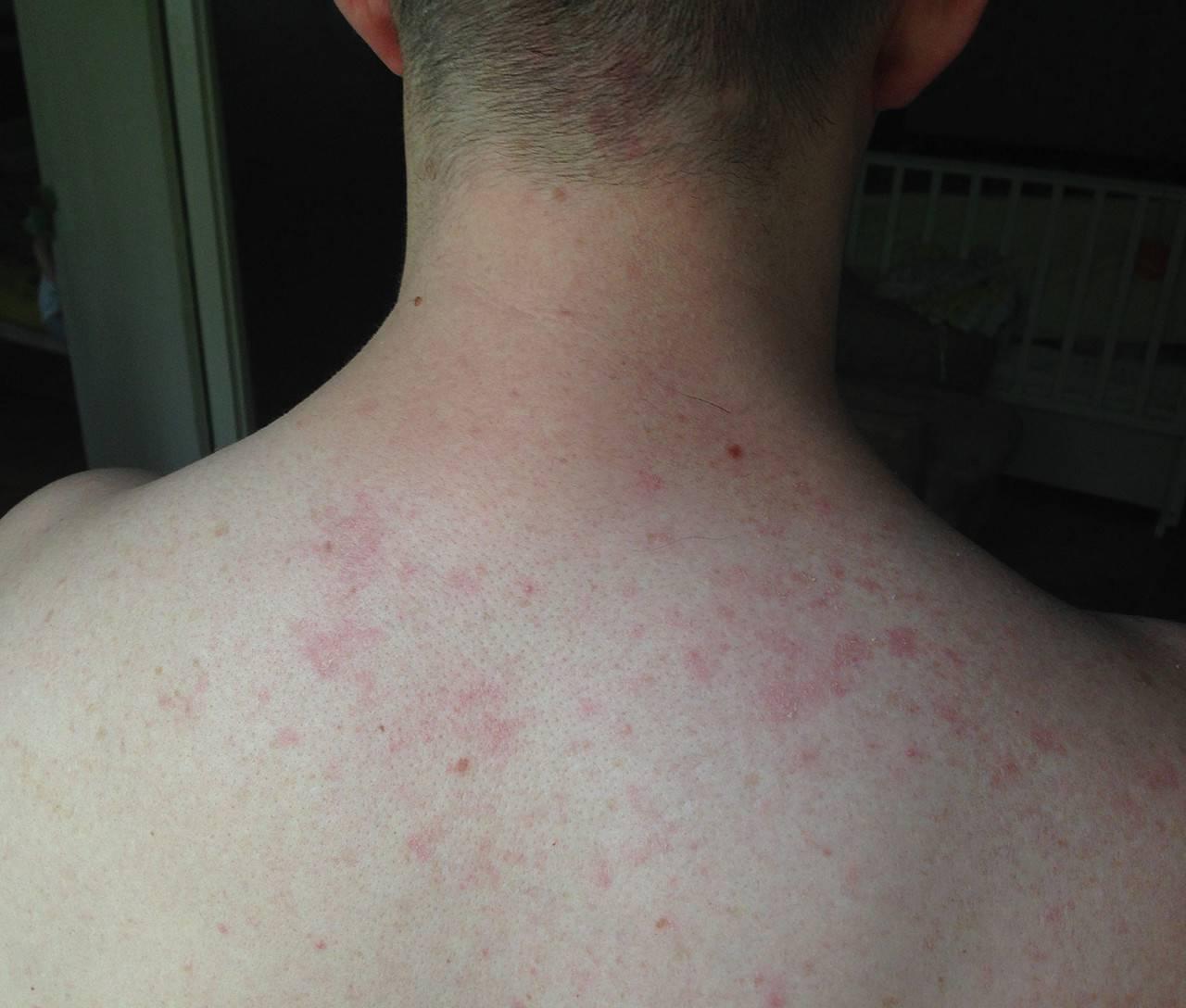 Аллергия на алкоголь: красные пятна, симптомы и лечение