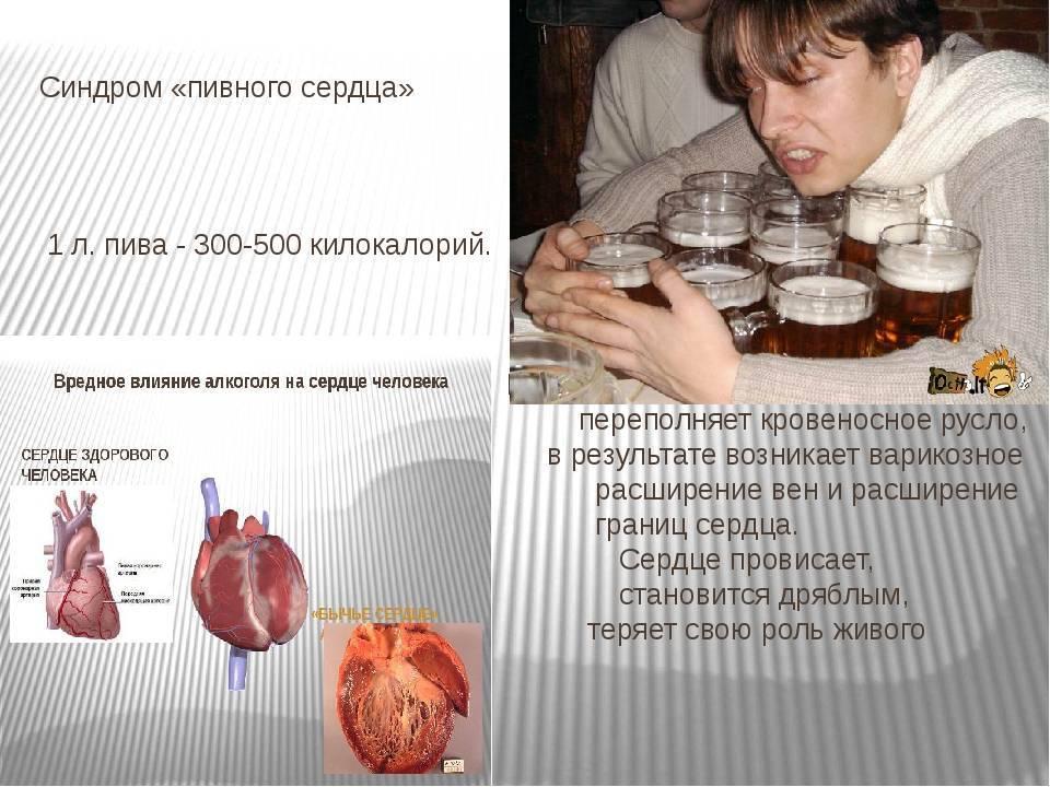 Пивной алкоголизм симптомы у мужчин