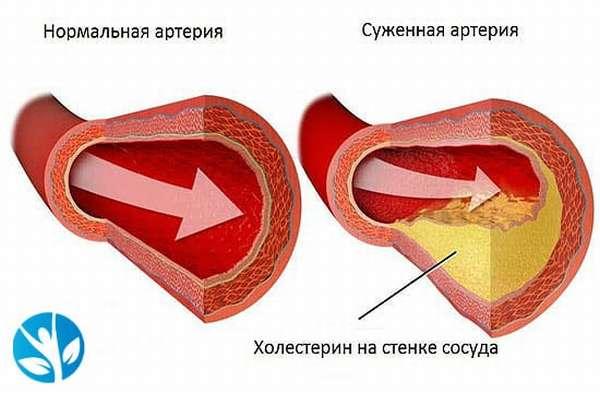 Алкоголь и холестерин, влияние спиртного атеросклероз, алкоголь и повышенный ох