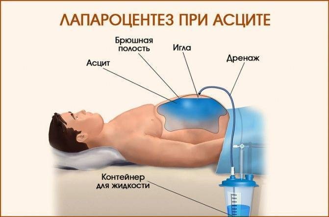 Мочегонные средства (диуретики) при асците: диувер, верошпирон, фуросемид, торасемид, травы