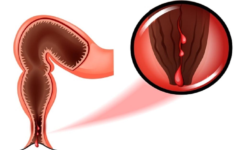 Кровь из заднего прохода и простатит при лечении простатита применяется ли а