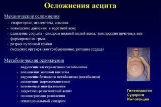 Асцит: причины, симптомы и лечение асцита брюшной полости