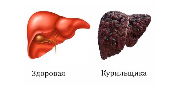 Влияние курения на печень. заболевания печени, связанные с курением