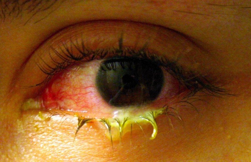 Желтые глаза. причины желтизны белков глаз, диагностика причин, лечение патологий :: polismed.com