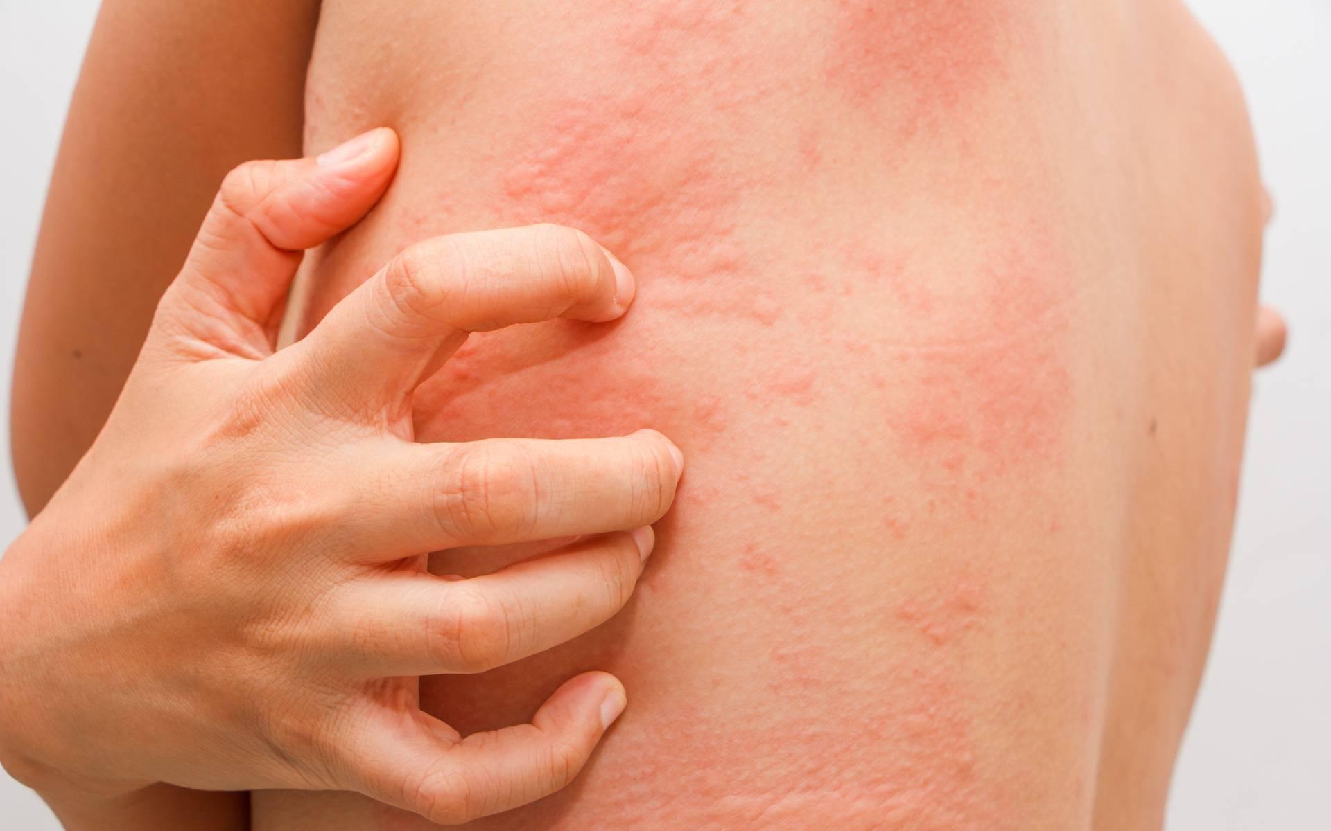 Как лечить кожный зуд при заболевании печени?? - твоя печенка