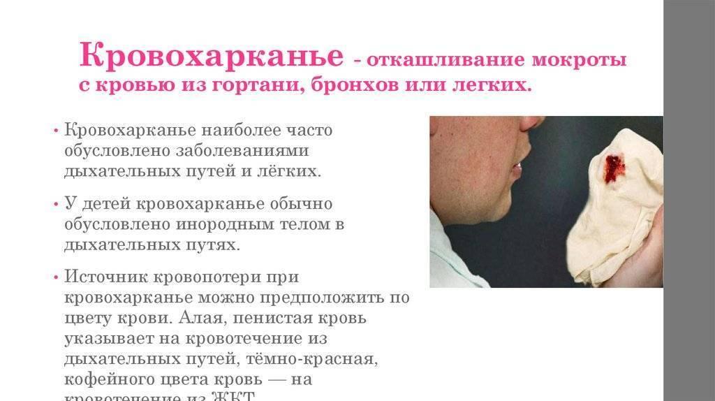 Мокрота в горле без кашля причины
