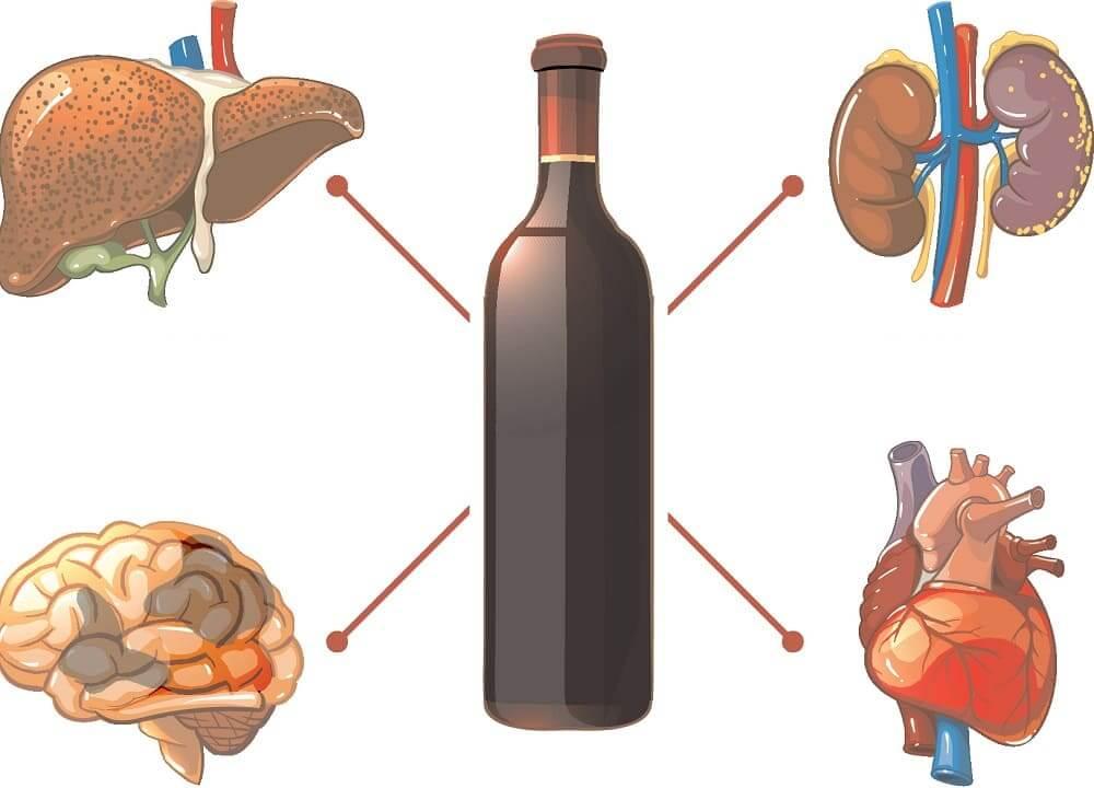 4 пагубных последствия употребления алкоголя при хроническом и остром холецистите