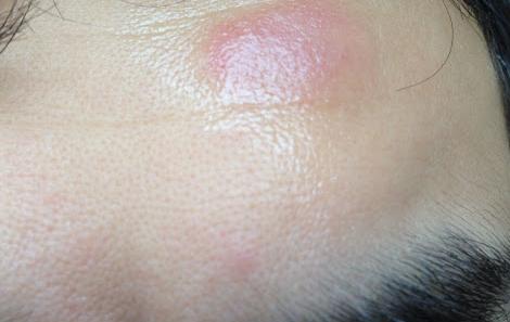 Аллергические красные пятна на теле чем лечить?