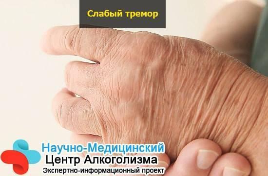 Немеет правая рука после алкоголя