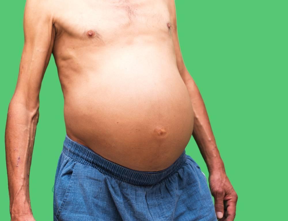 Лечение асцита брюшной полости