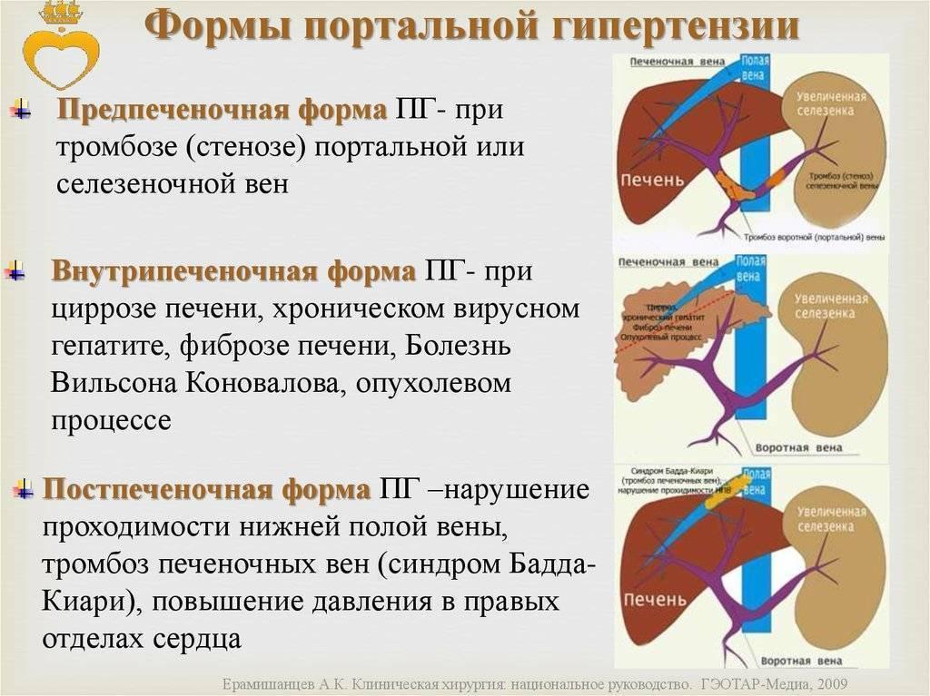 Цирроз печени с синдромом портальной гипертензии