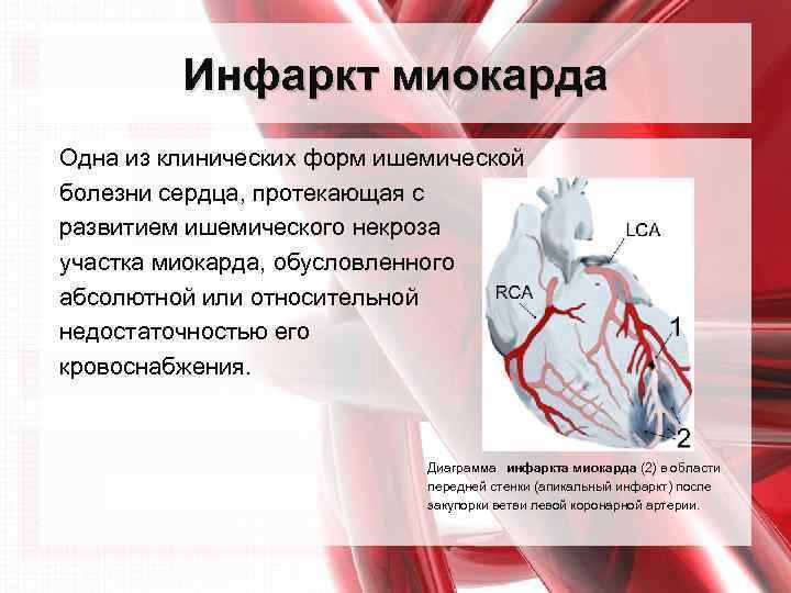 Можно употреблять спиртное при инфаркте миокарда
