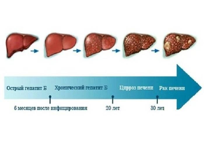 Алкогольный гепатоз как последствие злоупотребления горячительными напитками
