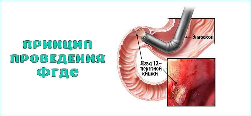 Можноли пить воду перед гастроскопией желудка— правила