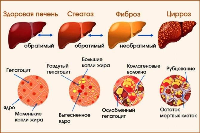 Крупноузловой цирроз печени исход - лечение печени