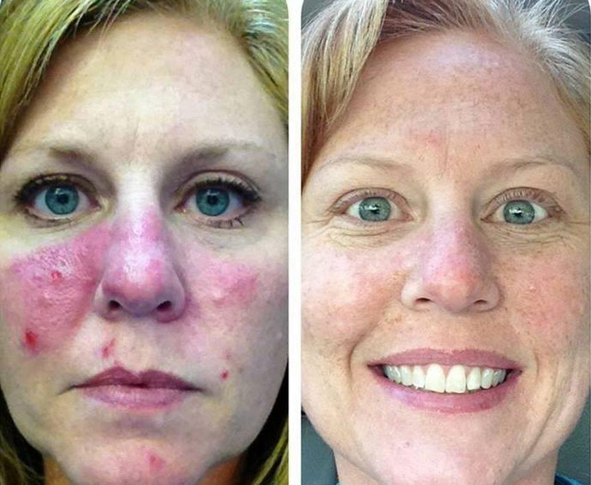 Прыщи на лице в 30 лет у женщины: причины и чем лечить