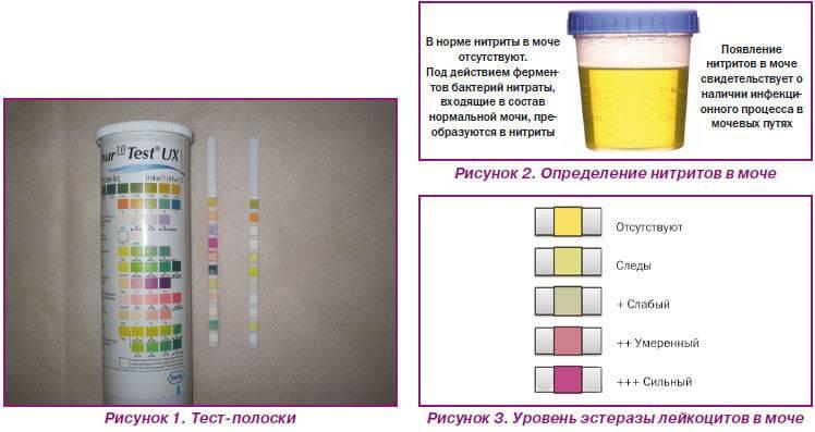 Тест на диабет по моче