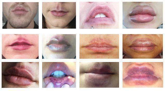 Сколько держится отек после увеличения губ гиалуроновой кислотой и как от него избавиться? - idealplastic.ru