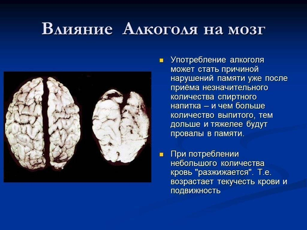 Отравление головного мозга алкоголем: как восстановить память