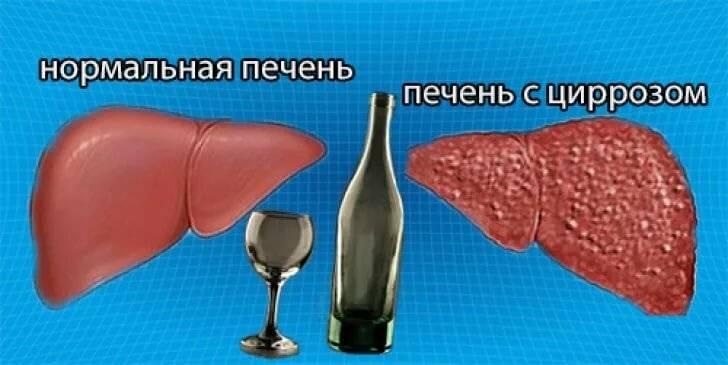 Как минимизировать вред от алкоголя: организм и похмелье