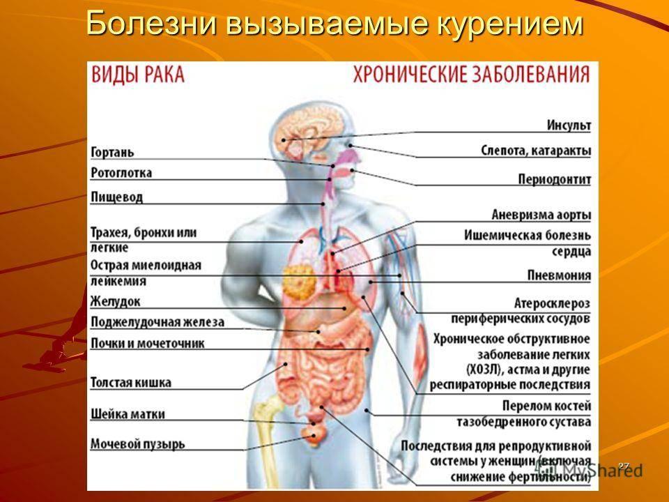Можно ли курить при язве желудка и язве двенадцатиперстной кишки