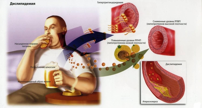 Курение и холестерин: связь и влияние | musizmp3.ru