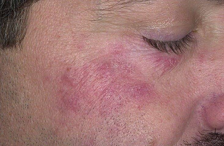 Почему возникают красные пятна на лице после алкоголя