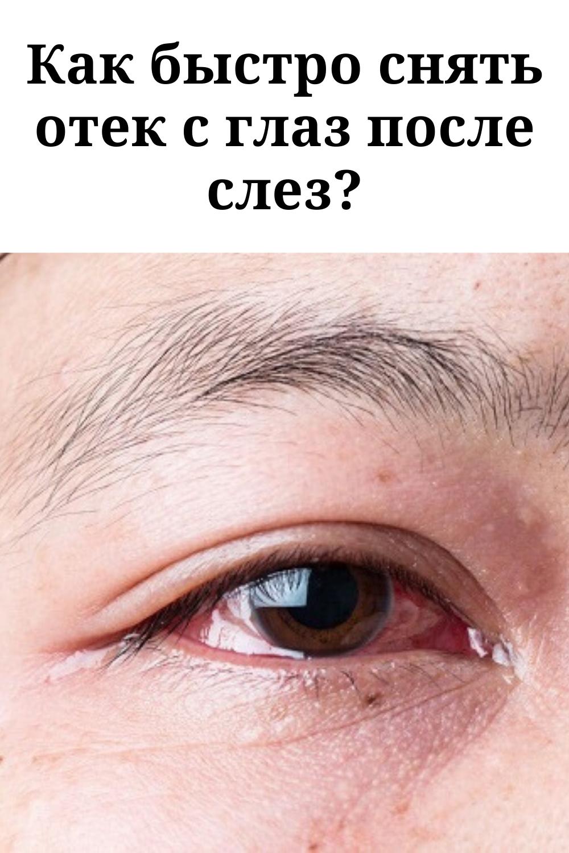Как быстро избавиться от отеков и темных кругов под глазами в домашних условиях?