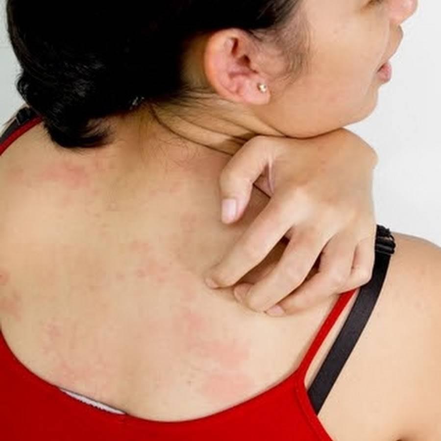 Зуд кожи тела при заболеваниях печени - причины, виды болезней