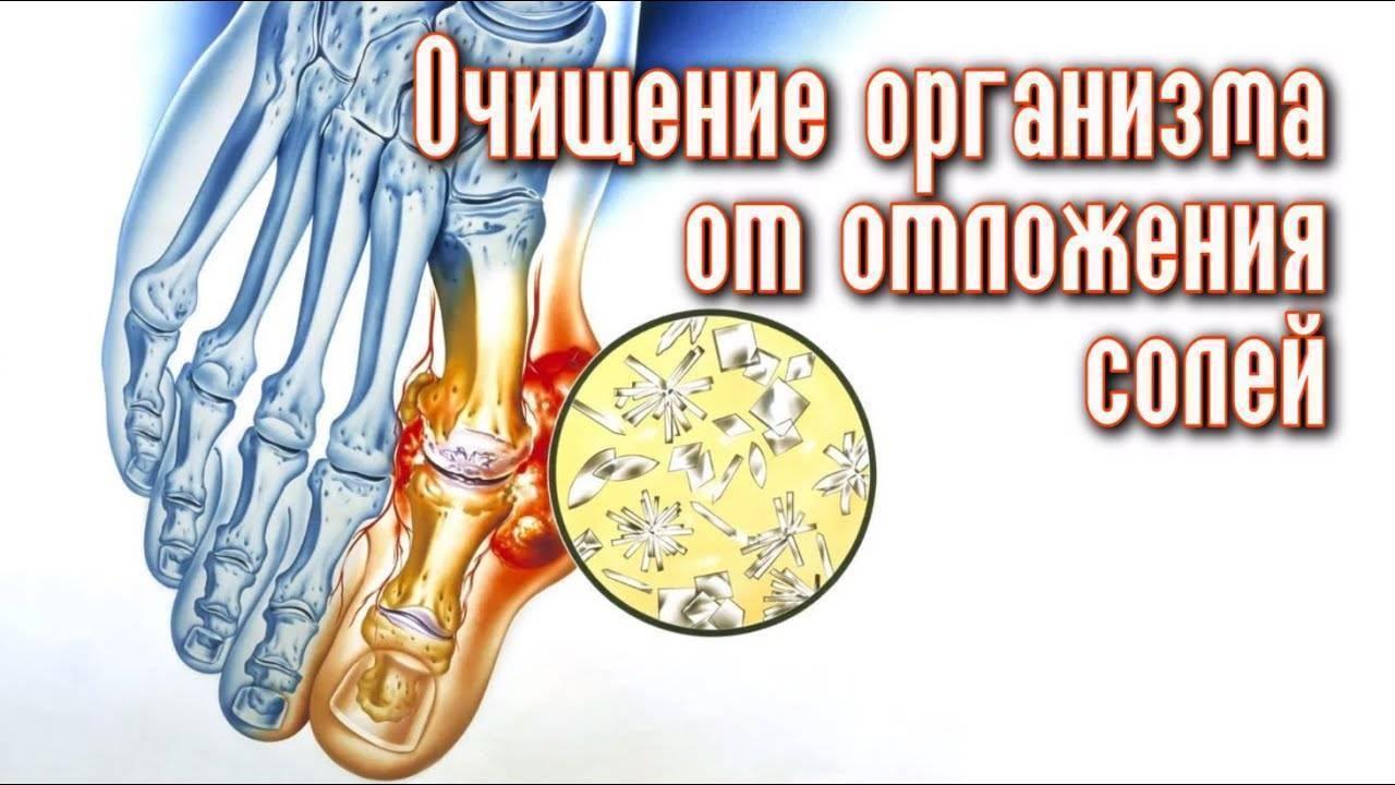 Как вывести лишнюю соль из организма в домашних условиях