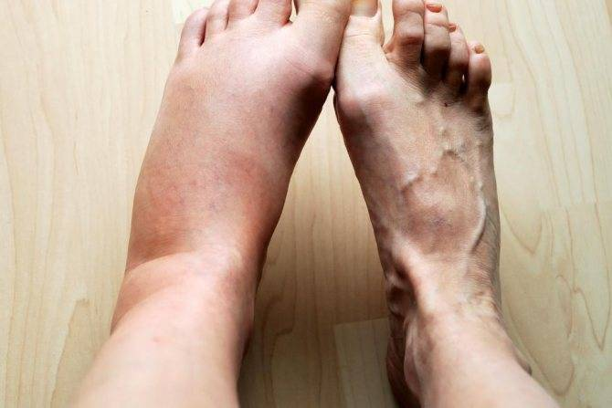 Как снять опухоль с лица после удара