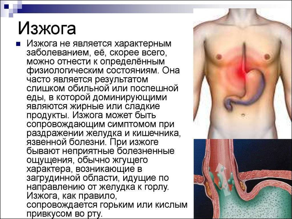 Изжога: причины возникновения и лечение
