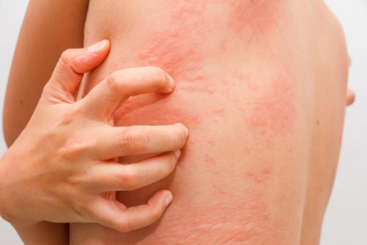 Крапивница у взрослых: фото симптомов, лечение и причины появления