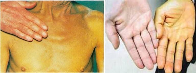 Звездочки и покраснение ладоней при циррозе печени