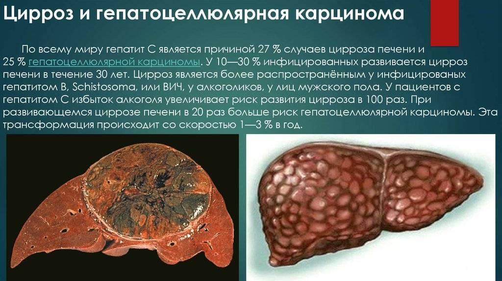 Цирроз печени 3 степени: сколько с ним живут, симптомы и лечение