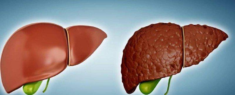 Чем отличается цирроз от рака печени. рак печени и цирроз