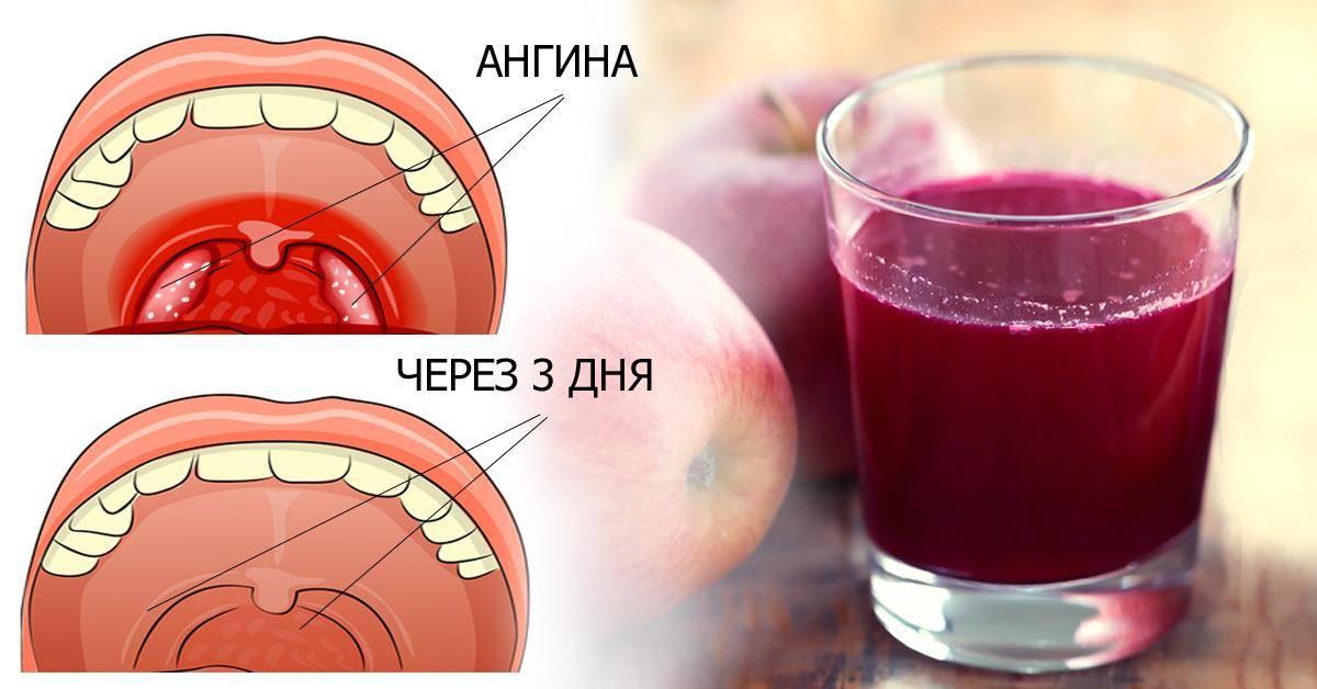 Можно ли полоскать горло содой при боли или ангине