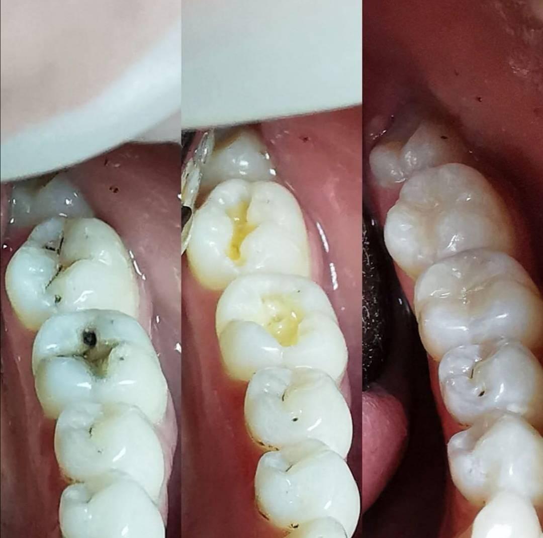 Можно ли курить после лечения зуба (установки пломбы)