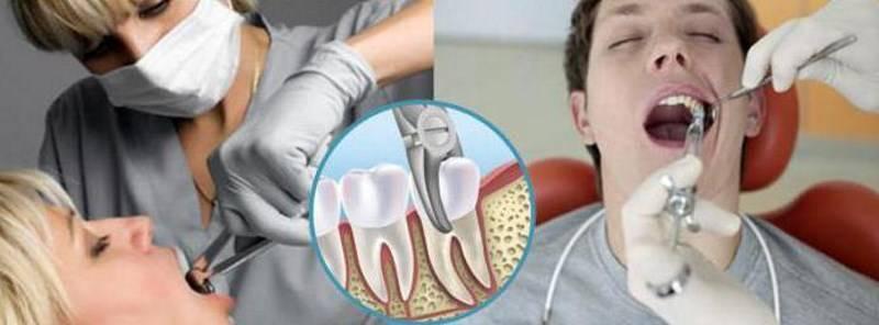 Алкоголь до и после лечения и удаления зуба