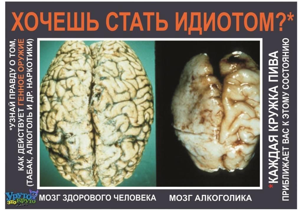 Восстановление мозга после употребления алкоголя
