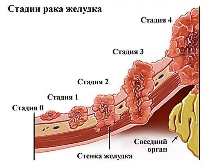 Третья стадия рака: как и чем лечить, симптомы и диагностика