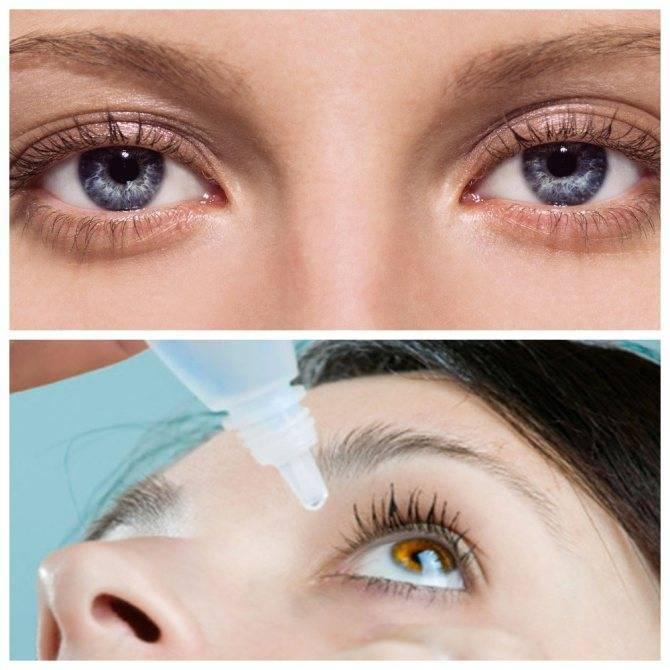 Как сузить зрачки: глазные капли для сужения, способы уменьшить в домашних условиях