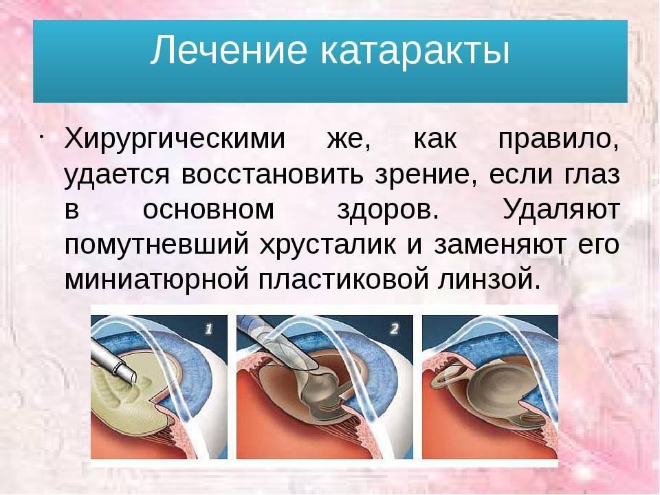 Катаракта: симптомы и лечение, профилактика  болезни — спросиврача