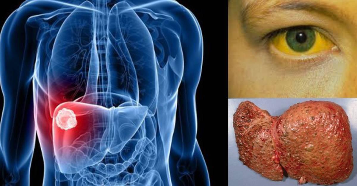 Лечится ли цирроз печени? цирроз печени: восемь естественных способов лечения можно ли избавиться от цирроза печени.