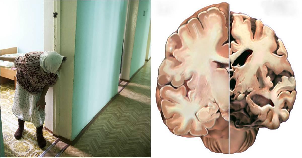 Деменция у пожилых людей симптомы, причины старческого слабоумия
