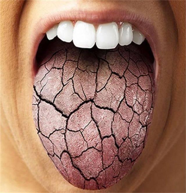 Сухость во рту: 16 средств, в случае если пересыхает в ротовой полости — net-bolezniam.ru